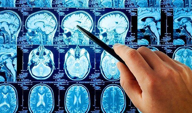 Nörolog çıktı!