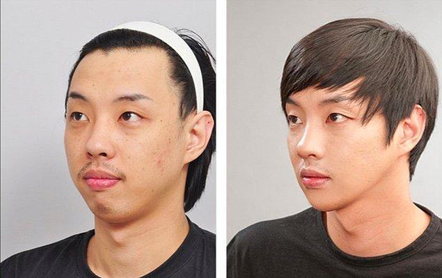 Özellikle burun, kulak estetiği, saç ekimi ve botoks gibi uygulamaları tercih eden erkekler için şok edici bir uygulama gündemde.