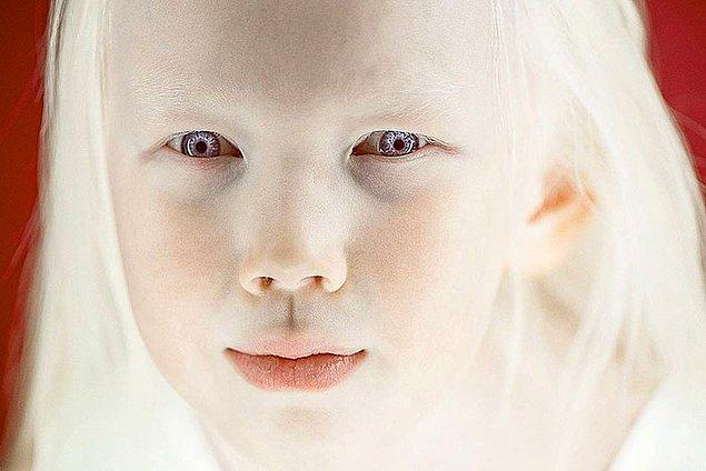Bu minik kızın büyüleyici güzellikteki saçları ve ten uyumu insanları kendine hayran bırakmasına yetiyor.