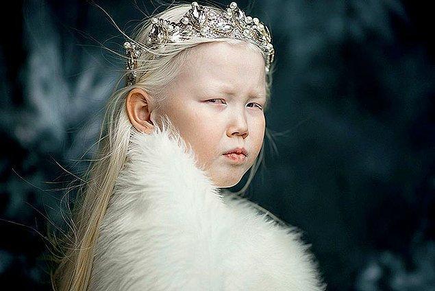 """Annesi bu modellik konusu hakkında """"Şimdiden birçok modellik ve reklamcılık ajansından teklif aldık."""" dedi."""
