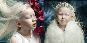 Güzelliği ile Ünlü Ajansları Peşinden Koşturan 8 Yaşındaki Albino Pamuk Prenses Nariyana