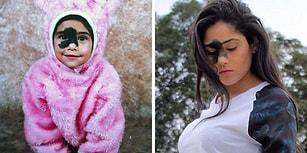 Yüzündeki Siyah Doğum Lekesini Aldırmak Yerine Onunla Barışmayı Tercih Eden Cesur Kadın