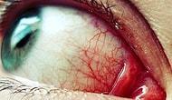 """""""Beş Dakikacık Bakayım"""" Diye Başlayıp Gözünüz Kanayıncaya Kadar İzleyeceğiniz 17 Görüntü"""