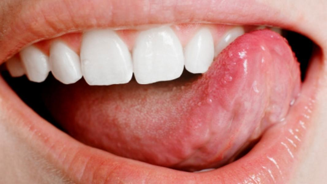 Cancer of the mouth floor treatment folk remedies