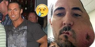Yüzünün Yarısını Kanser Dolayısıyla Kaybettikten Sonra Hayata Yeniden Dönen Genç Adam