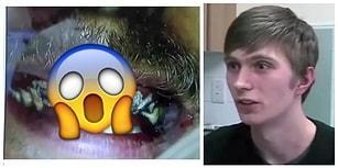 Neyse ki Diş Hekimleri Var! 20 Yıldır Dişlerine Fırça Sürmemiş Adamın İbretlik Hikayesi