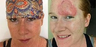 Bronzlaşmak İçin Saatlerce Güneş Altında Bekleyip Cilt Kanseri Olan Genç Kadın