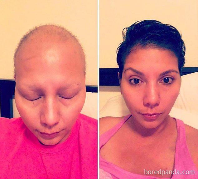 24. Göğüs kanserini yendikten sonra: