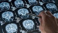 Ailesinde veya Yakın Çevresinde Alzheimer Hastası Olanların Çok İyi Bildiği 15 Şey