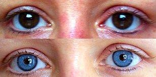 Değer mi Hiç?! Son Estetik Çılgınlığı İris İmplantı ile Göz Rengi Değiştirme Operasyonu
