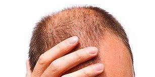 Dermatologların En Çok Önerdiği Marka ile Saç Dökülmesi Derdini Kafamızdan Atıyoruz