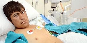 Elektrik Tellerine Takılan Kuşu Kurtarırken Akıma Kapıldı: 17 Yaşındaki Genç Çobanın İki Eli Kesilecek...