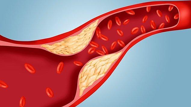7. Kolesterol tanısı!