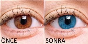Göz Rengi Değiştirme Ameliyatından Sonra Yeni Moda Düşünce Gücüyle Göz Rengi Değiştirme: Biyokinezi