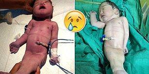Hindistan'da Dünyaya Gelen 'Deniz Kızı Sendromlu Bebek' Dört Saat Sonra Hayatını Kaybetti!