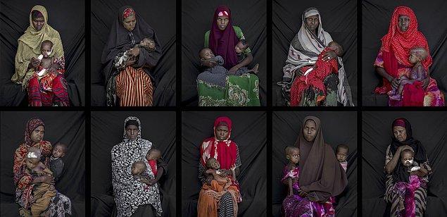 13. Somali'de hasta çocuklar. 📷 Arif Hüdaverdi Yaman