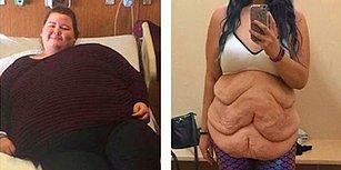 Güzellik Algısı Yaratan Bu Düzen Batsın! 87 Kilo Vermesine Rağmen Mutsuz Olan Jessica'nın Çarpıcı Hikayesi!