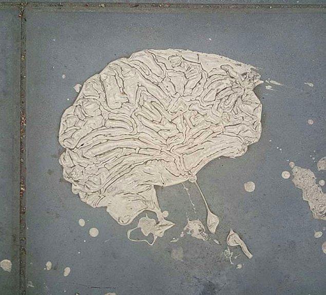 17. Beyninin pekmezi akmış dedikleri bu mu?