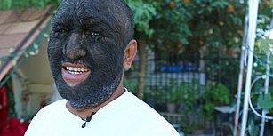 Dünyanın En Kıllı İnsanı Olabilir: Yüzünün %98'i Kılla Kaplı Adam
