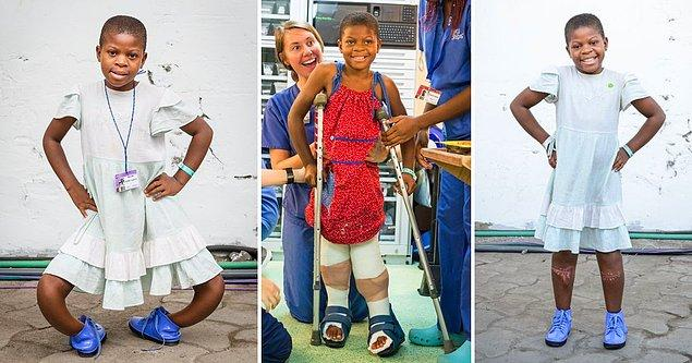 Bu küçük kızın adı da Justine. Doğuştan bacakları eğeri. Gemide yapılan operasyondan 5 ay sonraki haline ve yüzündeki gülümsemesine bir bakar mısınız?