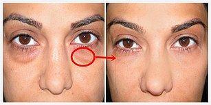 Göz Altı Torbalarına Elveda! Sürekli Şişen Gözlerinizi Daha Güzel Gösterecek 13 Mükemmel Tavsiye