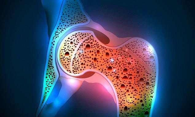 1. Osteoropoz