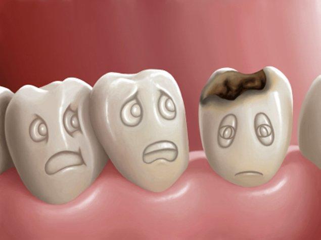 20. Kötü diş sağlığı