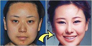 Doktor, Beni Baştan Yarat! Estetik Operasyonlarla Başka Bir İnsana Dönüşen 19 Asyalı Kadın