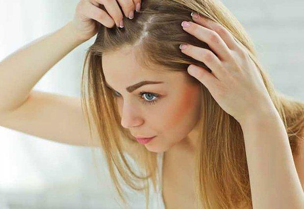 Saçlarım çok kepekleniyor :(