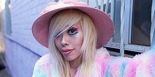 Barbie Bebeğe Benzemek İsteyen Kadın, Daha Batılı Görünmek İçin Göz Kapaklarından Ameliyat Oldu