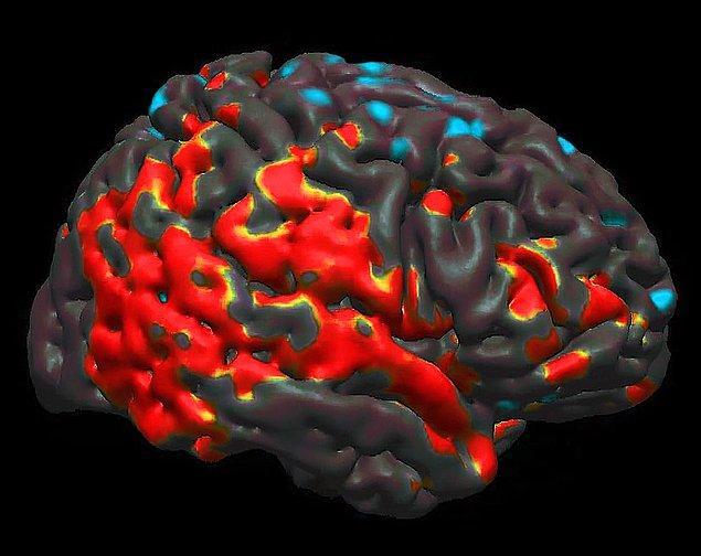5. Vücuttaki kolestrolün %25'i beyinde bulunur. Kolestrol tüm beyin hücreleri için vazgeçilmez bir unsurdur. Yeterince kolestrol alınmazsa beyin hücreleri ölmeye başlar.