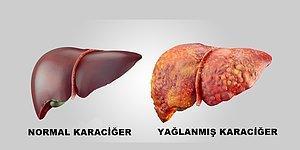 İçten İçe Bizi Öldürebilen Bir Tehlike: Karaciğer Yağlanması ve Korunma Yolları!