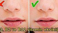 Göz Ardı Etmeyin! Vücudunuzun 'Vitaminim Bitti!' Diye Çığlık Attığını Gösteren 8 İşaret