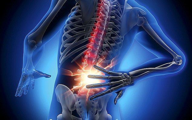 3. Bel ağrınızı tanımladınız mı?
