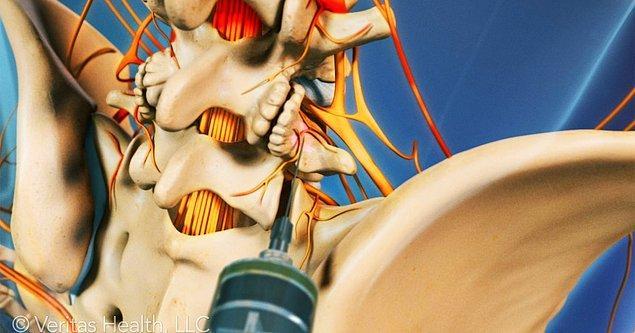 23. Bel ağrısını azaltması için uygulanan enjeksiyonlar