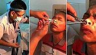 10 Gün Boyunca Burun Kanaması Şikayeti Olan Adamın Burnundan Çıkan Şeyi Görünce Şok Olacaksınız