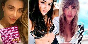 Ünlülerin Yeni Akımı! Sosyal Medyada Makyajsız Halleriyle Bu Akıma Ayak Uyduran 13 Ünlü Kadın!