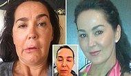 Düzenli Botoks Uygulamasının 10. Yılında Felç Olup Yatağa Mahkum Kalan Talihsiz Makyaj Sanatçısı
