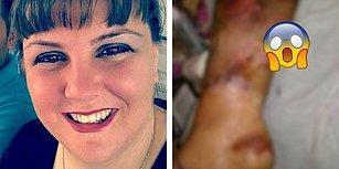 Pedikür Yaptırırken Nasırlarını Kestirdiği İçin Bacağını Kaybetme Tehlikesiyle Karşı Karşıya Kalan Kadın