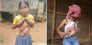 14 Yaşındaki Taylandlı Veronica, Göğsünde Büyüyen Parazit İkizinin Alınması İçin Ameliyata Hazırlanıyor!