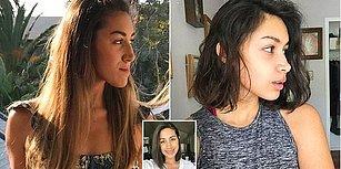 Alt Çenesi Fazlasıyla Önde Olduğu İçin Ameliyat Olan Genç Kadının Şok Eden Değişimi!