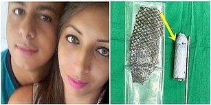 Doğuştan Cinsel Organı Olmadığı İçin Balık Derisinden Vajina Yapılan Brezilyalı Kadın