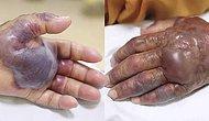 Suşi Yediği İçin Kaptığı Enfeksiyon Sonucu Kangren Olup Kolu Kesilen Yaşlı Adam