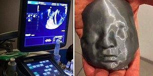 Görme Engelli Çift, Yakında Dünyaya Gelecek Bebeklerinin Ultrason Görüntüsünü 3 Boyutlu Yazıcı İle Hissetti!