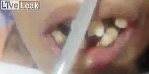 Dişçi Şoka Uğradı! Ağzının İçinde Kurtlar Yaşayan Hindistanlı Hasta