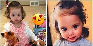 Genetik Bir Sendromun Doğuştan Büyük ve Güzel Gözler Bahşettiği Minik Kız: Mehlani