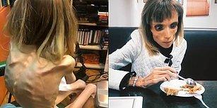 4 Yaşındaki Bir Çocukla Aynı Kiloda! Yalnızca 17 Kilo Ağırlığında Olan 26 Yaşındaki Anoreksik Kadın