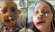 Geçirdiği Yüz Ameliyatından Sonra Yaşadıklarını Anlatan Kanser Hastası Genç Kadın
