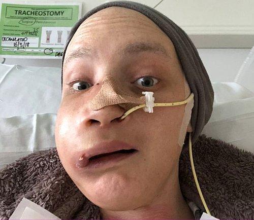 Geçirdiği Yüz Ameliyatından Sonra Yaşadıklarını Anlatan Kanser Hastası Genç Kadın 14
