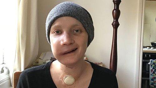 Geçirdiği Yüz Ameliyatından Sonra Yaşadıklarını Anlatan Kanser Hastası Genç Kadın 31